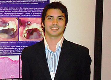 http://www.uandes.cl/noticias/ignacio-velasco-odo-09-obtuvo-el-segundo-lugar-en-un-congreso-americano-de-cirujanos-maxilofaciales.html
